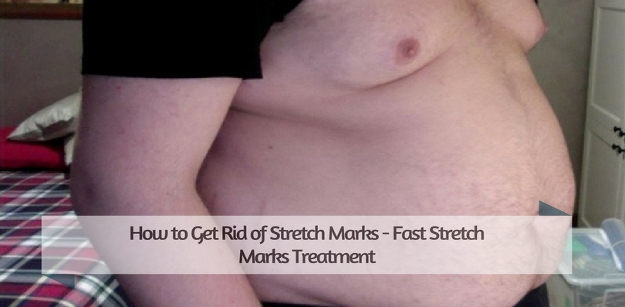 How to Get Rid of Stretch Marks - Fast Stretch Marks Treatment