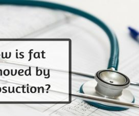 How is fat removed by liposuction