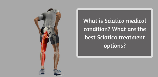 what is sciatica Sciatica is a cause of leg pain, tingling, and numbness often described as an electric shock that travels down the leg, sciatica is the result of a pinched nerve sciatica is a cause of leg pain, tingling, and numbness often described as an electric shock that travels down the leg, sciatica is the result of a.