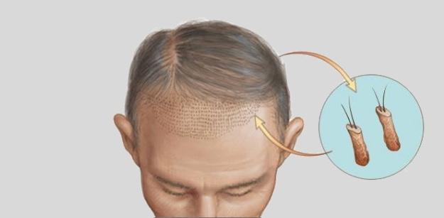 Misconceptions Regarding Hair Transplantation