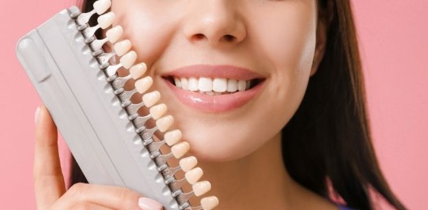 Essential Tips on How You Can Preserve Your Dental Veneers in Sydney