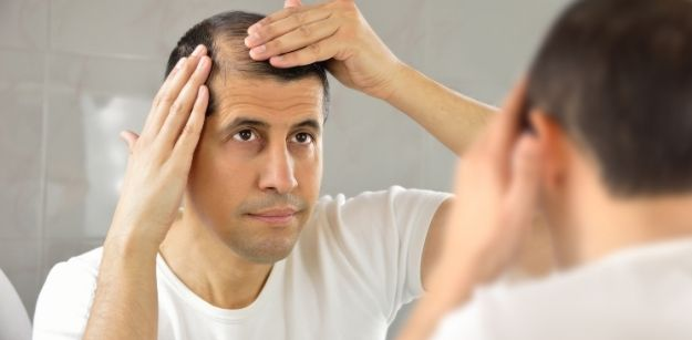 What Are Some Effective Ways to Treat Male Pattern Baldness