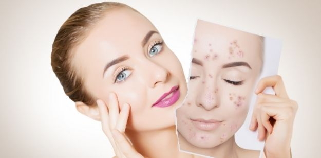 Inexpensive Ways to Treat Acne at Home