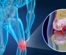 Best 8 Foods to Help Reduce Arthritis Pain